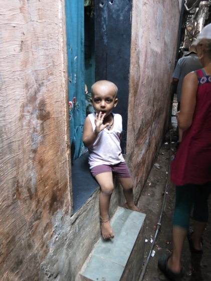 Mumbai: curious slum child - head shaved for lice, Dharavi