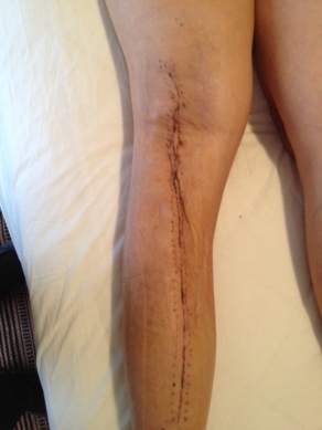 the much improved leg!