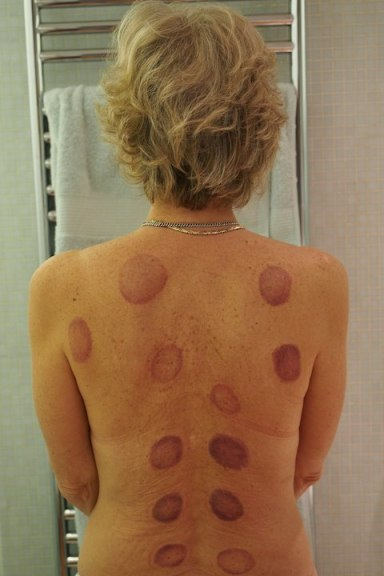 My back after cupping - Wah!