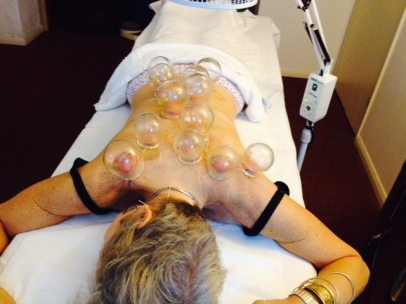 Cupping and acupuncture overkill!