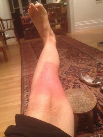 My leg showing the burn
