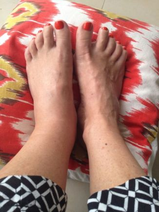 Swollen foot, showing off new pedicure (it's much worse now for the record!)