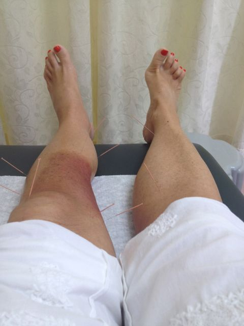 my legs with my 11 needles in box formation round my radiotherapy burn