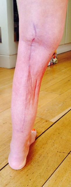 My leg post-op